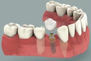 mono impianto dentale