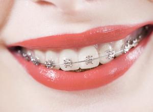 apparecchi dentali fissi