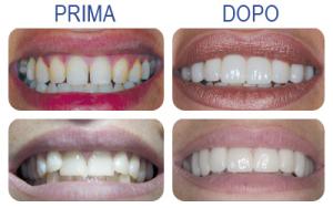 faccette dentali 2