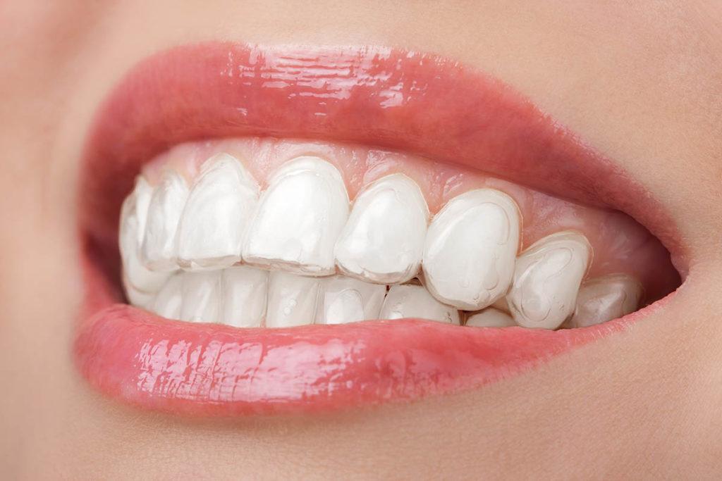sbiancamento denti fai da te a casa