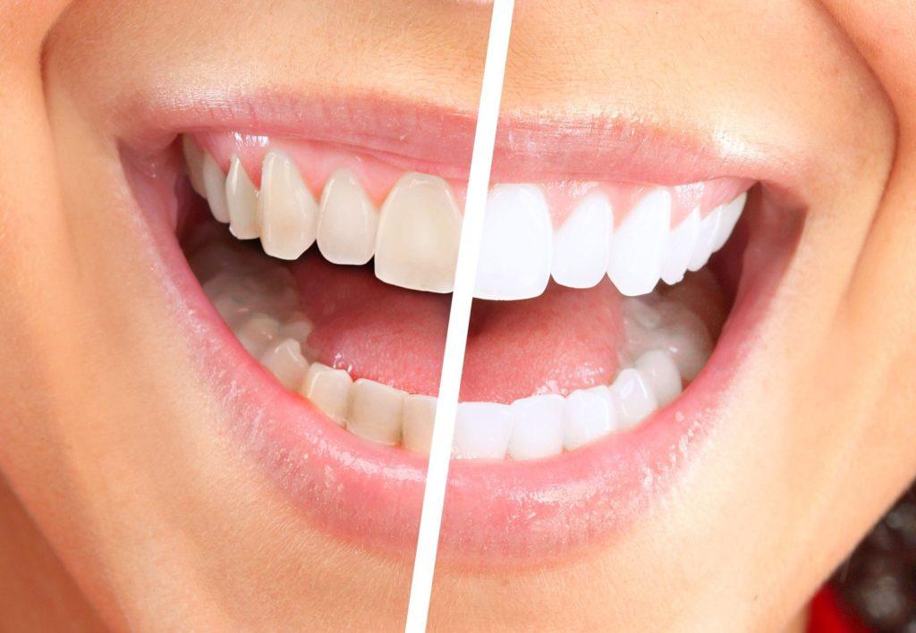 sbiancamento denti trento